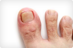 YOU HAVE AN INGROWN TOENAIL: WHAT NOW?