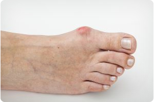 WHEN TO SEEK TREATMENT FOR BUNION PAIN