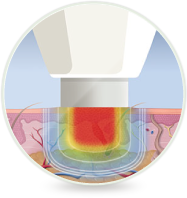 Swift Microwave Therapy - Foot Doctors of Kansas City